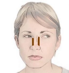 rostro-nariz-ancha
